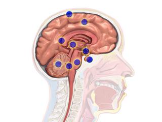 области рака мозга